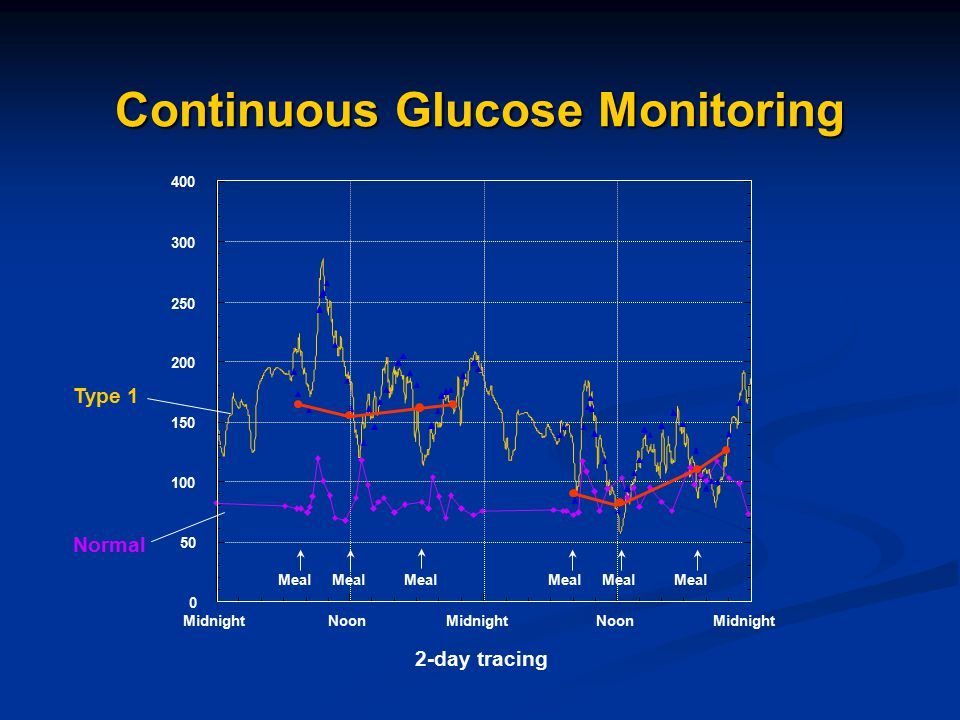 Continuous Glucose Monitoring Midnight Noon 0 50 100 150 200 250 300 400 Meal Type 1 Normal 2-day tracing