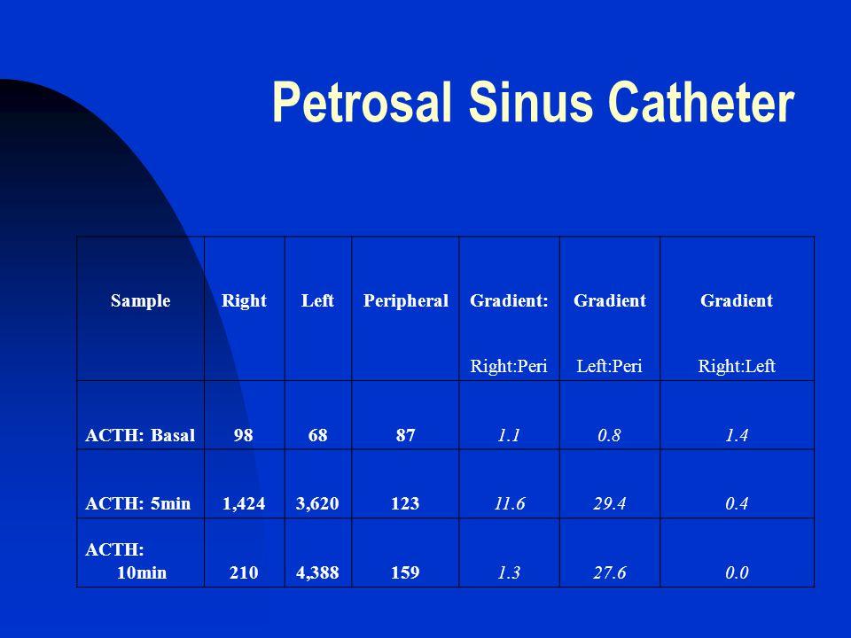 Petrosal Sinus Catheter SampleRightLeftPeripheralGradient:Gradient Right:PeriLeft:PeriRight:Left ACTH: Basal9868871.10.81.4 ACTH: 5min1,4243,62012311.