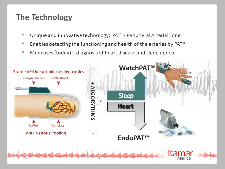 The Technology Unique and innovative technology: PAT ® - Peripheral Arterial Tone Enables detecting the functioning and health of the arteries by PAT® Main uses (today) – diagnosis of heart disease and sleep apnea + ALGORYTHMS WatchPAT™ EndoPAT™