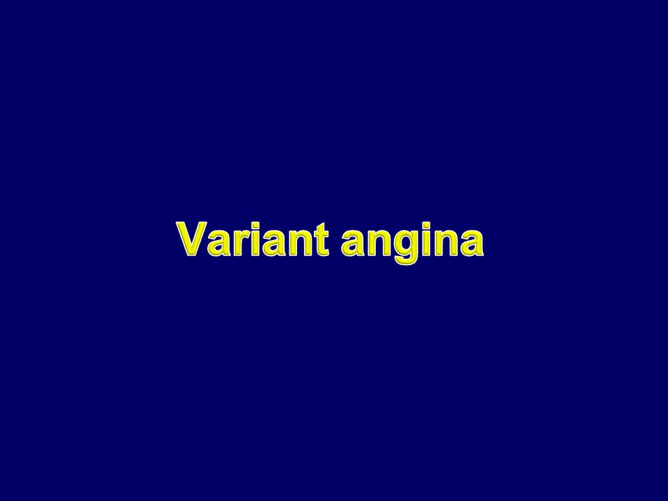 Introduction  Described as A variant form of angina pectoris by Dr.