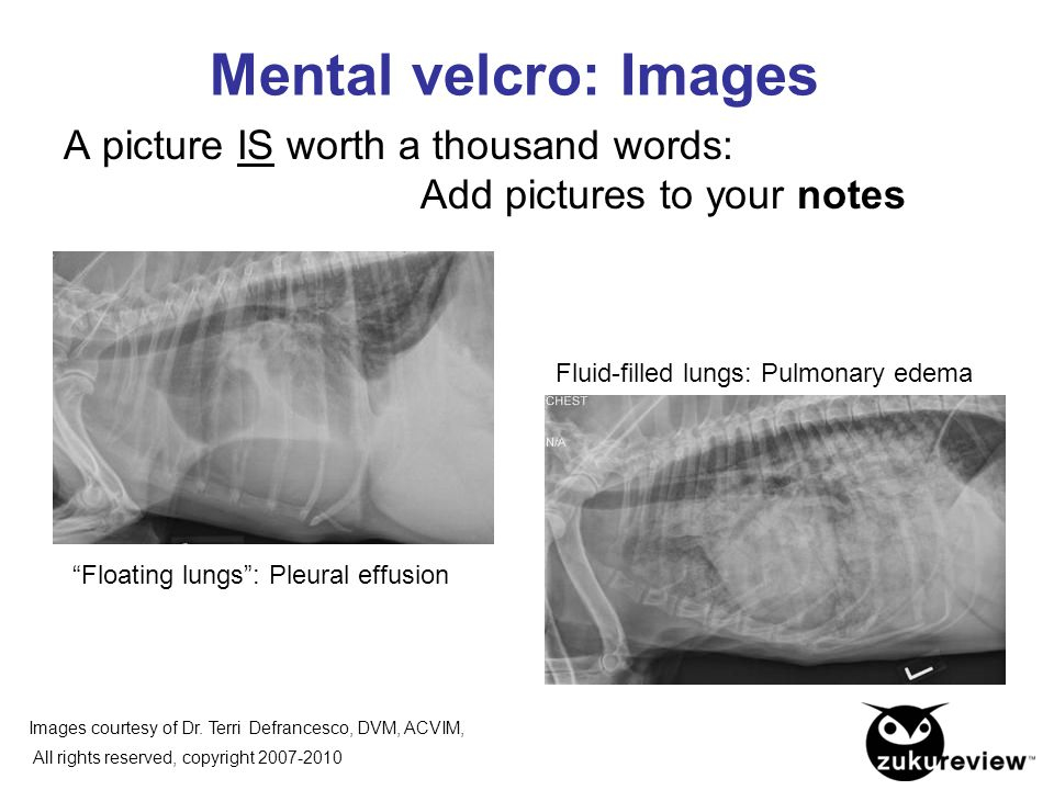 "Mental velcro: Images A picture IS worth a thousand words: Add pictures to your notes Fluid-filled lungs: Pulmonary edema ""Floating lungs"": Pleural ef"