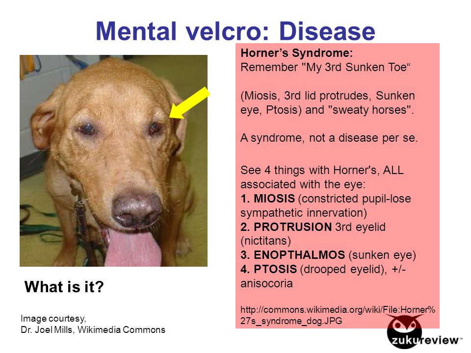 Image courtesy, Dr. Joel Mills, Wikimedia Commons Mental velcro: Disease What is it? Horner's Syndrome: Remember