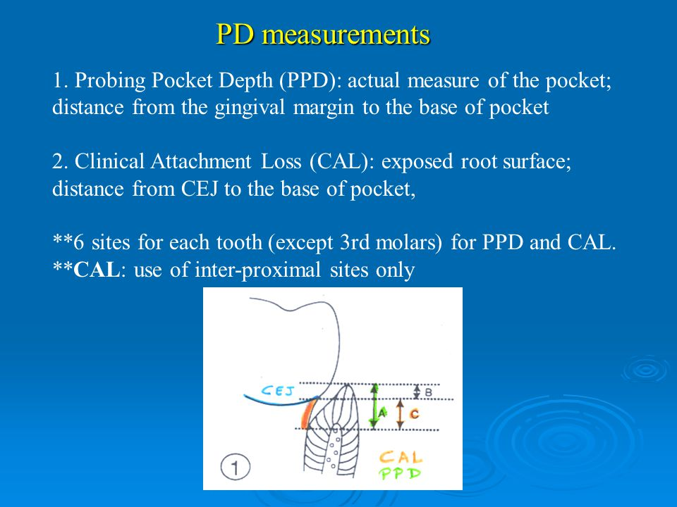 1. Probing Pocket Depth (PPD): actual measure of the pocket; distance from the gingival margin to the base of pocket 2. Clinical Attachment Loss (CAL)