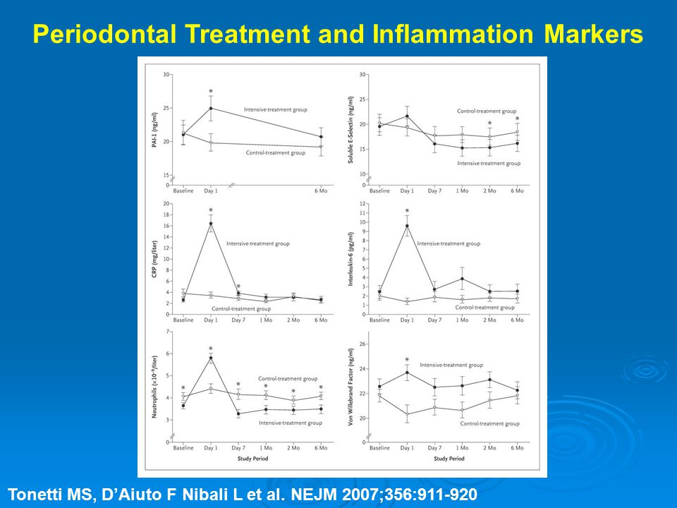 Periodontal Treatment and Inflammation Markers Tonetti MS, D'Aiuto F Nibali L et al.