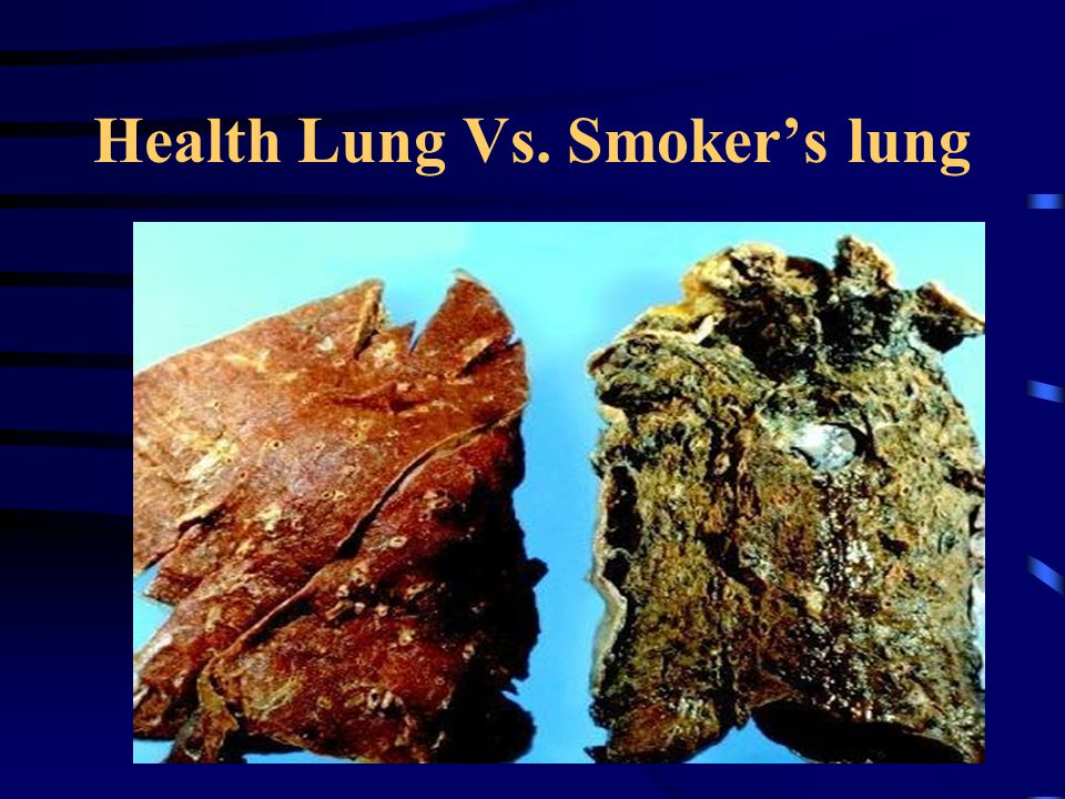 Health Lung Vs. Smoker's lung
