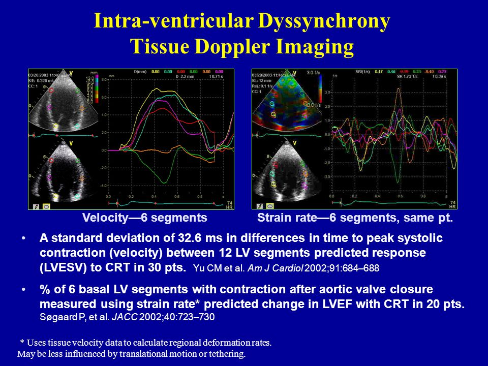 Intra-ventricular Dyssynchrony Tissue Doppler Imaging Velocity—6 segmentsStrain rate—6 segments, same pt. A standard deviation of 32.6 ms in differenc