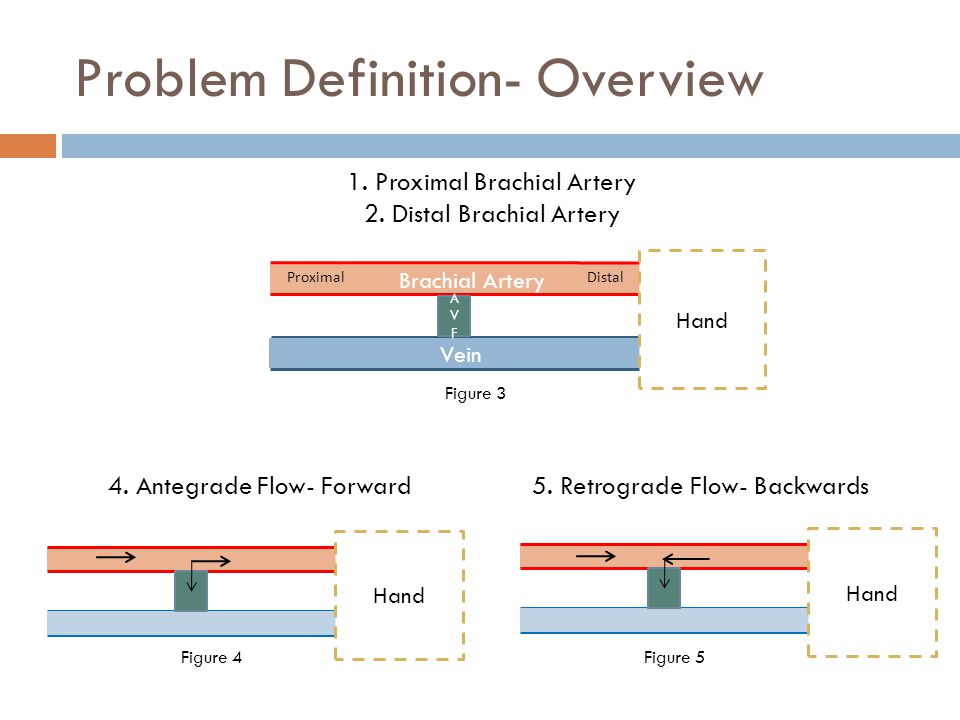 Problem Definition- Overview Brachial Artery Proximal Distal Vein Hand AVFAVF 1.