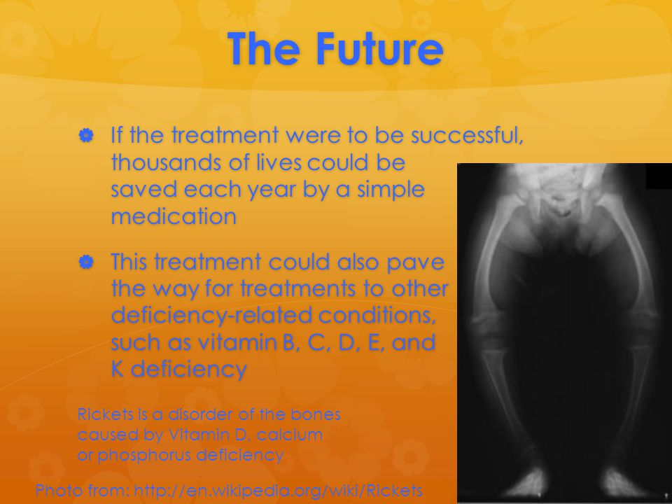The Future  If the treatment were to be successful, thousands of lives could be saved each year by a simple medication  This treatment could also pave the way for treatments to other deficiency-related conditions, such as vitamin B, C, D, E, and K deficiency Photo from: http://en.wikipedia.org/wiki/Rickets Rickets is a disorder of the bones caused by Vitamin D, calcium or phosphorus deficiency