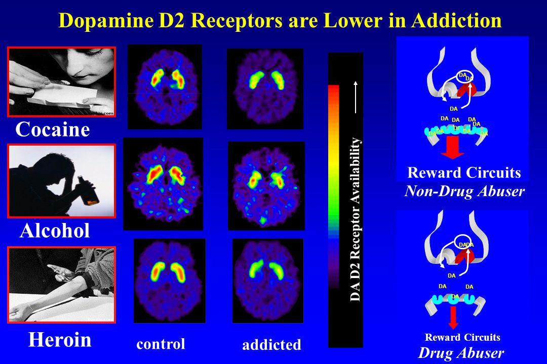 Dopamine D2 Receptors are Lower in Addiction DA D2 Receptor Availability control addicted Cocaine Heroin Alcohol DA Reward Circuits DA Reward Circuits DA Drug Abuser Non-Drug Abuser