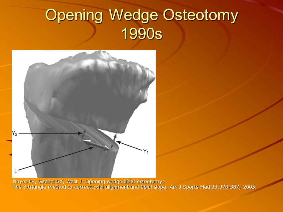 Opening Wedge Osteotomy 1990s Noyes FR, Goebel SX, West J: Opening wedge tibial osteotomy: The 3-triangle method to correct axial alignment and tibial slope.