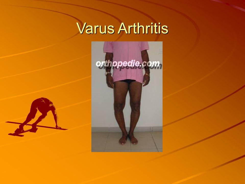 Varus Arthritis