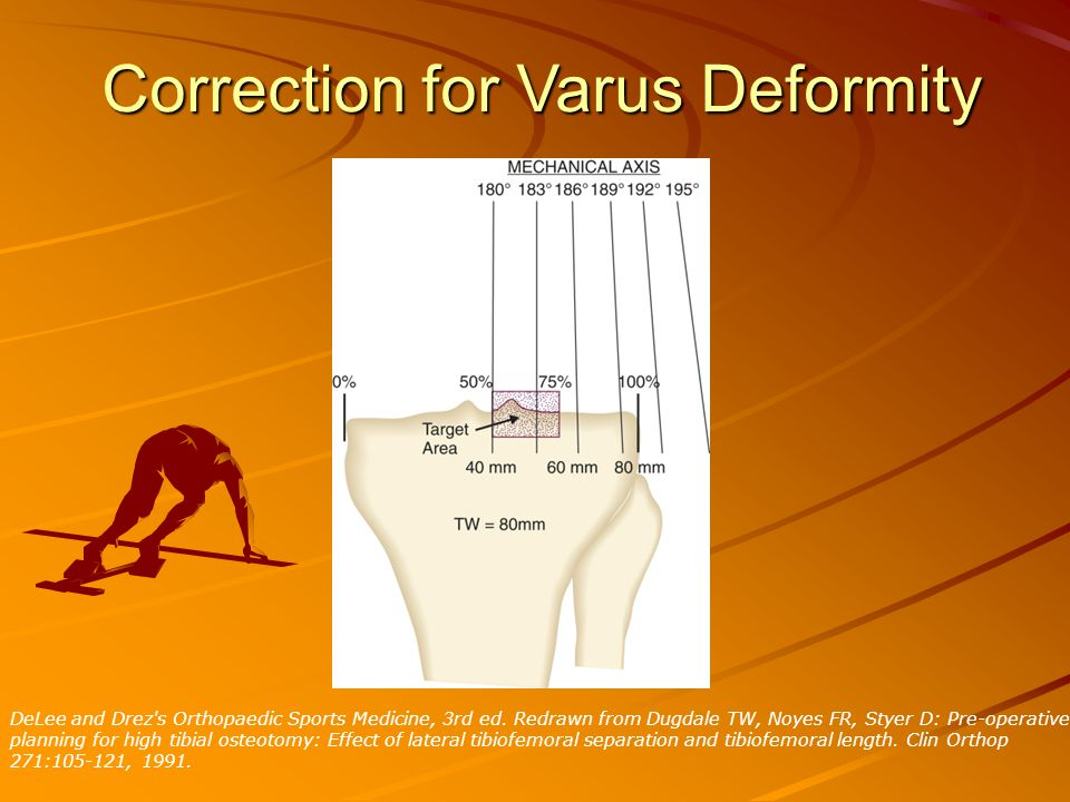 Correction for Varus Deformity DeLee and Drez s Orthopaedic Sports Medicine, 3rd ed.