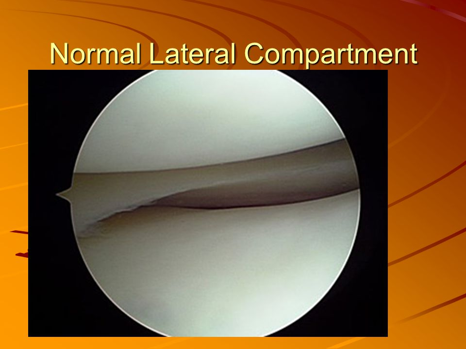 Normal Lateral Compartment