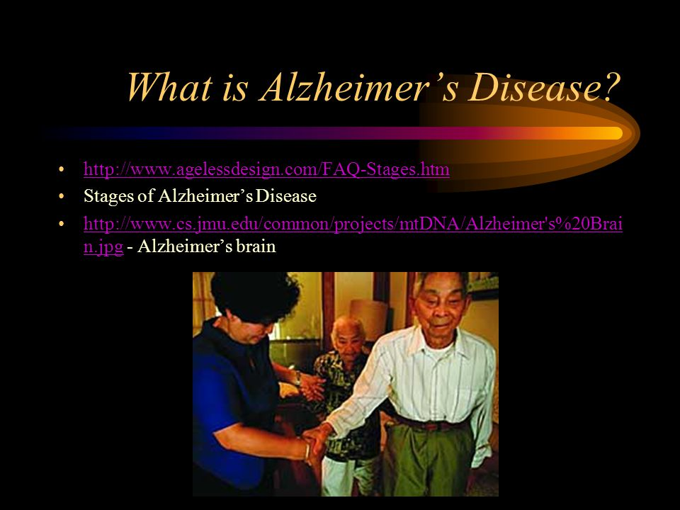 What is Alzheimer's Disease.
