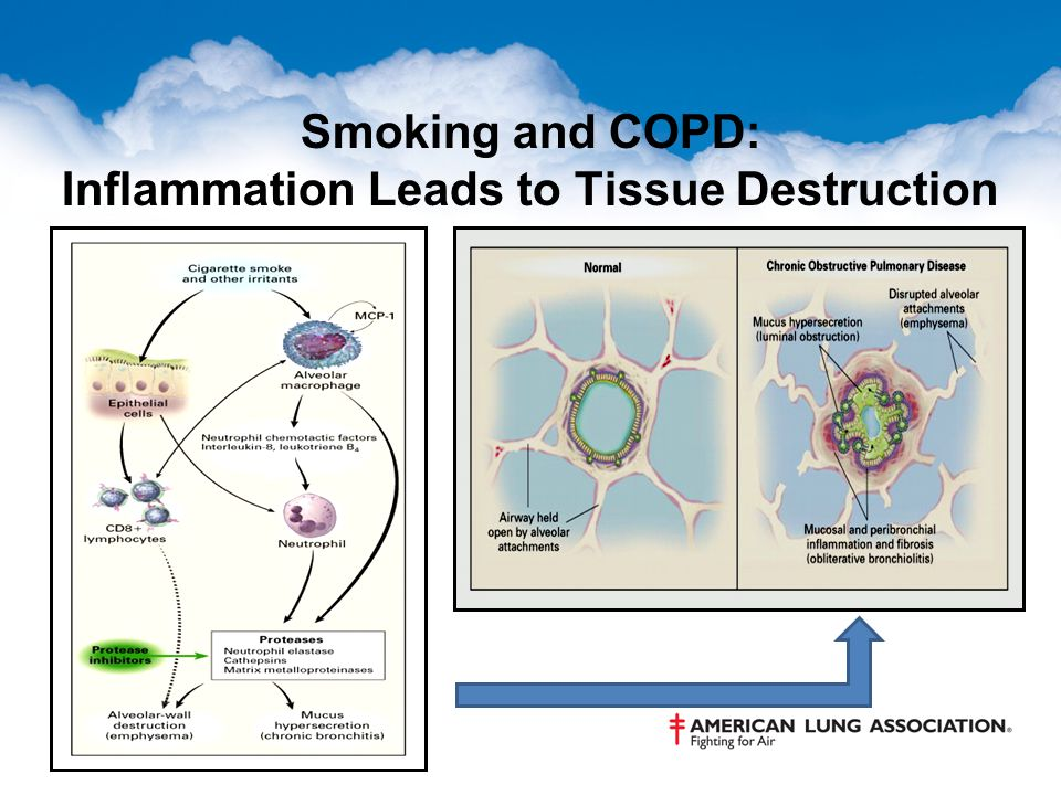 Smoking and COPD: Inflammation Leads to Tissue Destruction