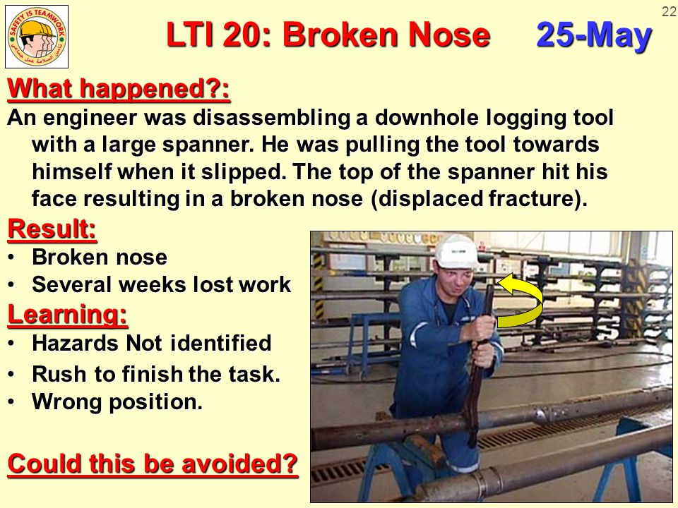 22 LTI 20: Broken Nose 25-May What happened?: An engineer was disassembling a downhole logging tool with a large spanner. He was pulling the tool towa