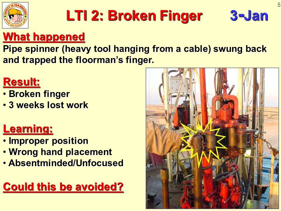 5 LTI 2: Broken Finger 3 - Jan LTI 2: Broken Finger 3 - Jan What happened Pipe spinner (heavy tool hanging from a cable) swung back and trapped the floorman's finger.
