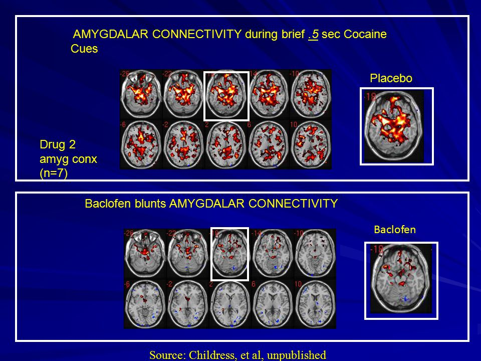AMYGDALAR CONNECTIVITY during brief.5 sec Cocaine Cues Drug 2 amyg conx (n=7) Placebo Baclofen Source: Childress, et al, unpublished Baclofen blunts AMYGDALAR CONNECTIVITY