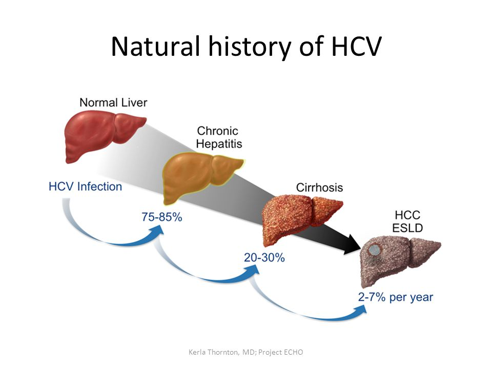 Natural history of HCV Kerla Thornton, MD; Project ECHO