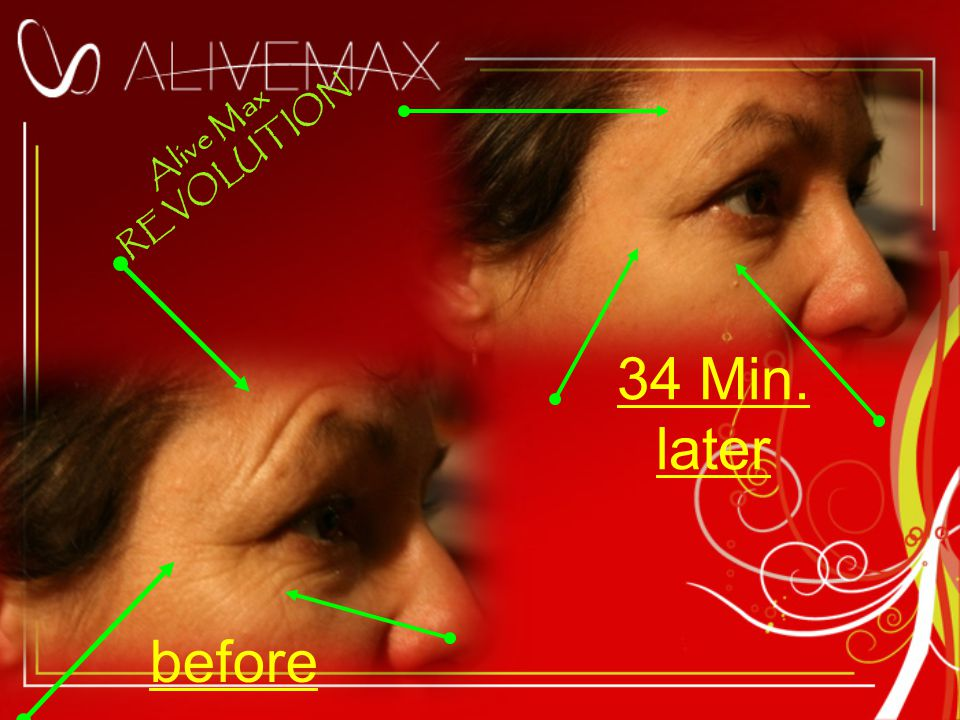 before Alive Max REVOLUTION 34 Min. later
