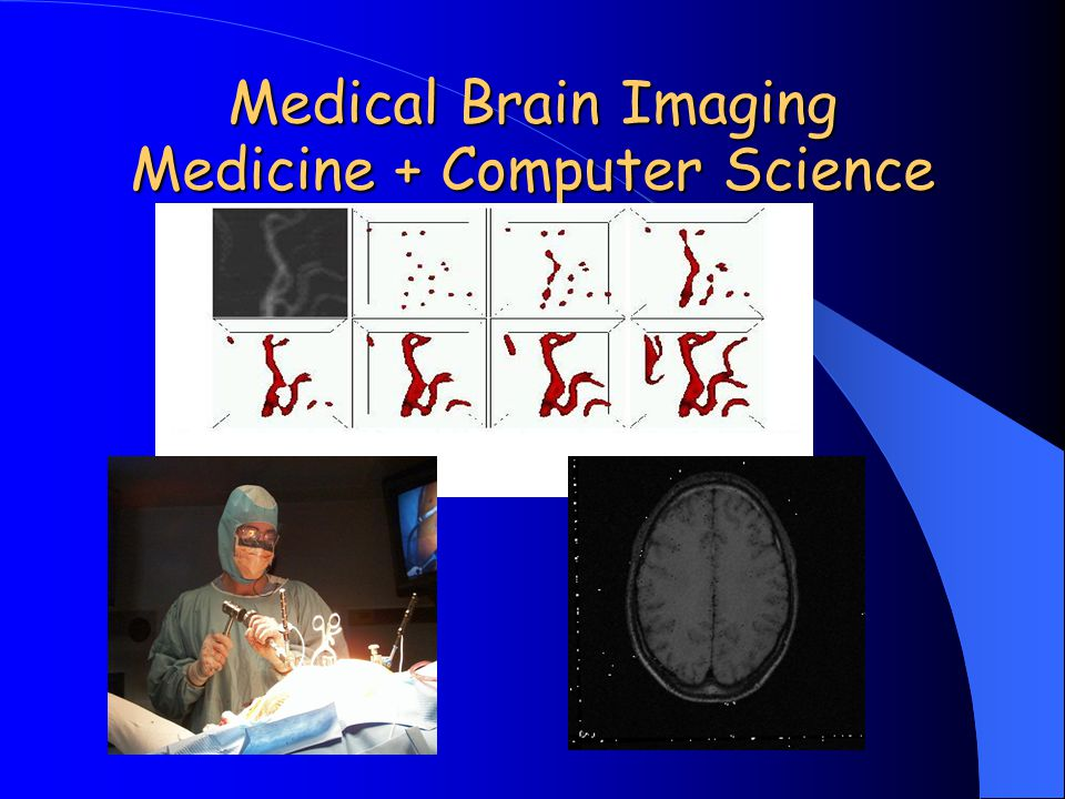 Medical Brain Imaging Medicine + Computer Science