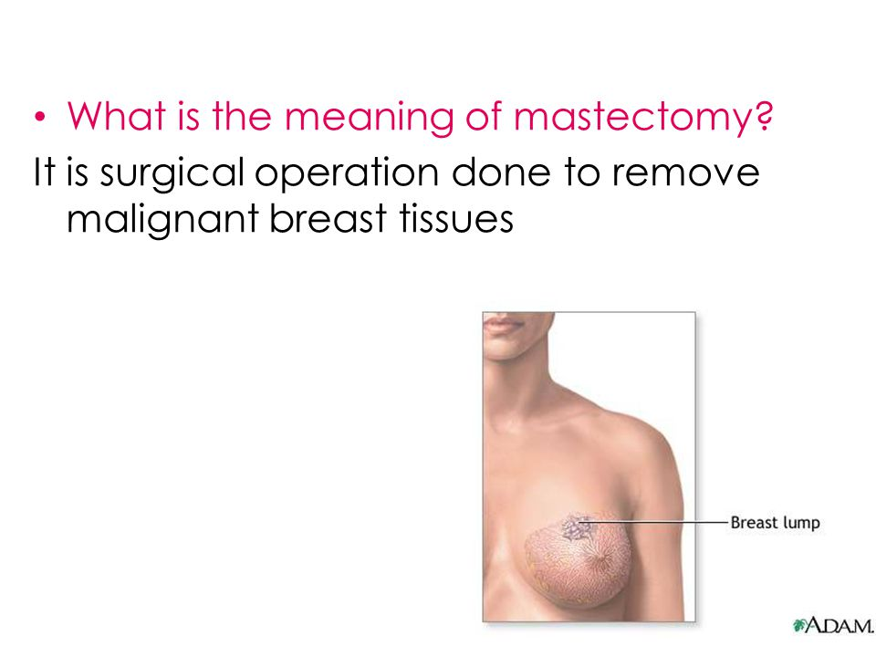 Types Simple mastectomy (the entire breast is removed, but the lymph nodes and surrounding muscle are left intact) Partial mastectomy (a larger amount of breast tissue and some skin are removed with the tumor.) Radical mastectomy (to remove all affected tissues and even the surrounding one as well ).
