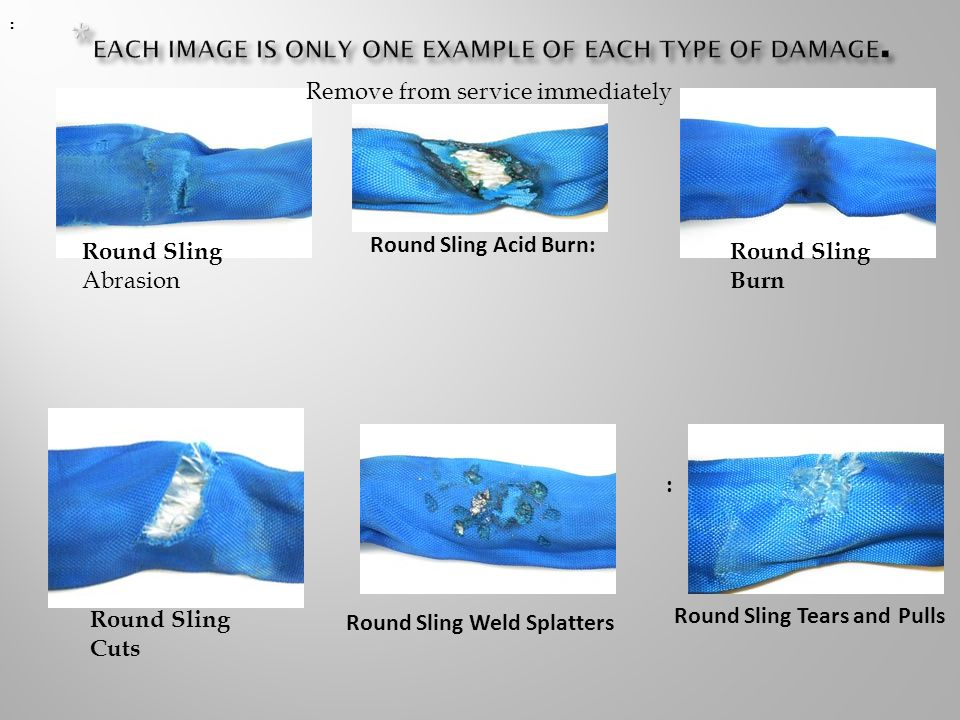 Round Sling Abrasion Round Sling Acid Burn: Round Sling Burn Round Sling Cuts : : :: Round Sling Weld Splatters Remove from service immediately Round