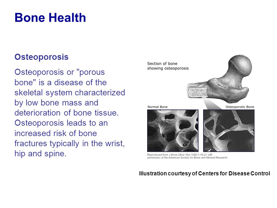 Osteoporosis Osteoporosis or porous bone is a disease of the skeletal system characterized by low bone mass and deterioration of bone tissue.
