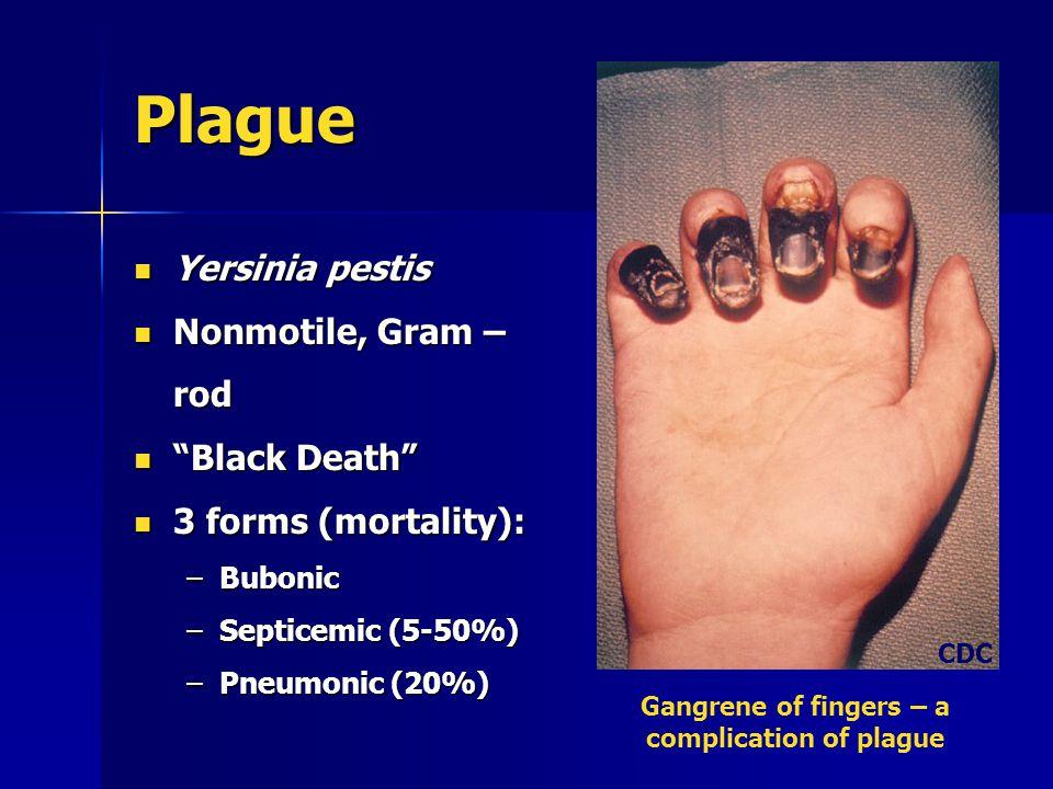 Plague Yersinia pestis Yersinia pestis Nonmotile, Gram – rod Nonmotile, Gram – rod Black Death Black Death 3 forms (mortality): 3 forms (mortality): –Bubonic –Septicemic (5-50%) –Pneumonic (20%) Gangrene of fingers – a complication of plague CDC