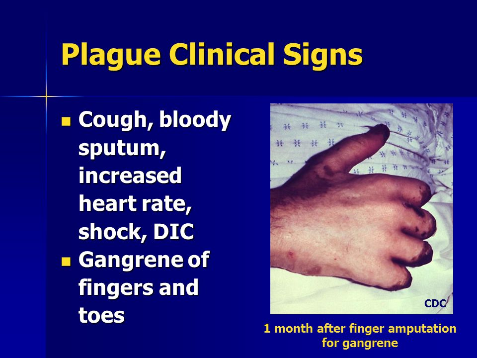 Plague Clinical Signs Cough, bloody sputum, increased heart rate, shock, DIC Cough, bloody sputum, increased heart rate, shock, DIC Gangrene of fingers and toes Gangrene of fingers and toes 1 month after finger amputation for gangrene CDC