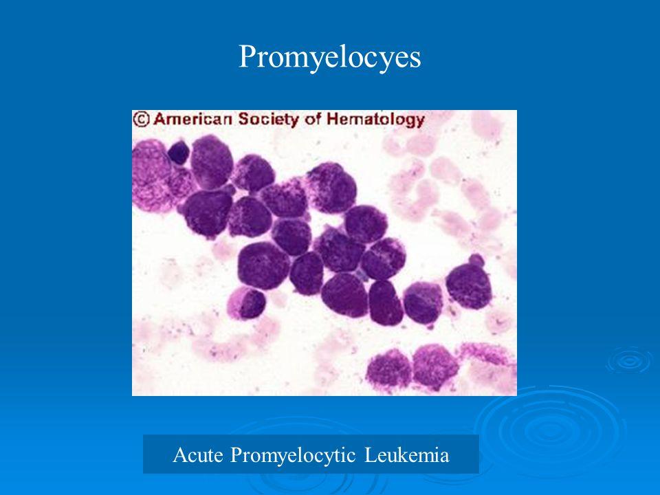 Promyelocyes Acute Promyelocytic Leukemia