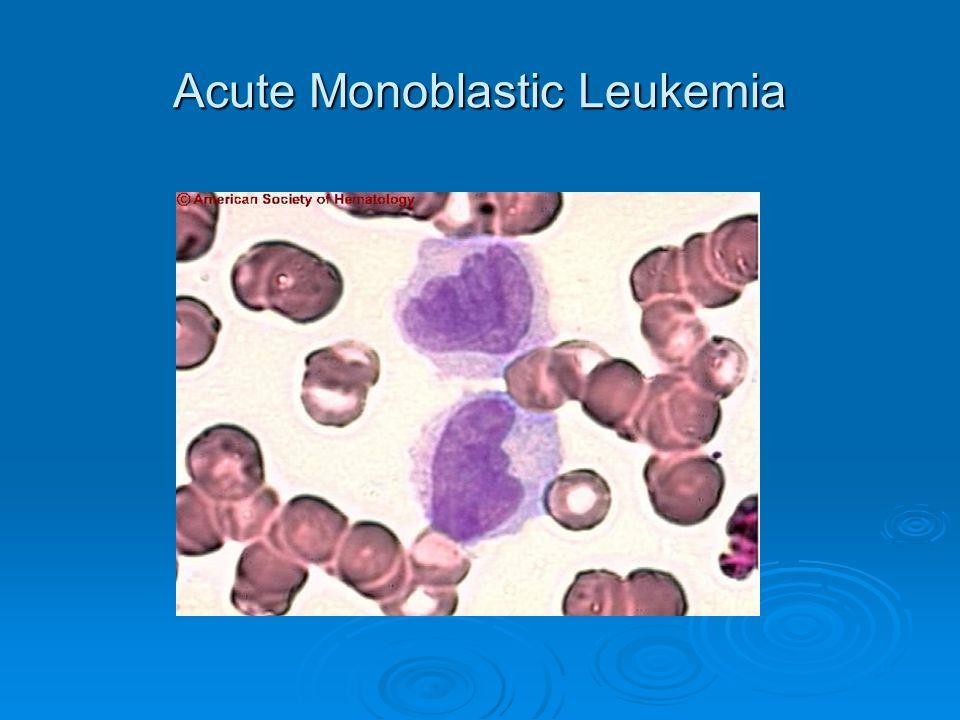 Acute Monoblastic Leukemia