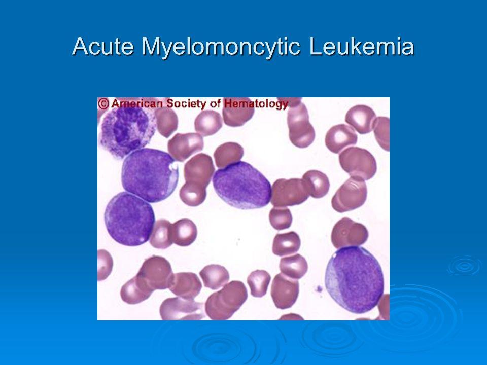 Acute Myelomoncytic Leukemia