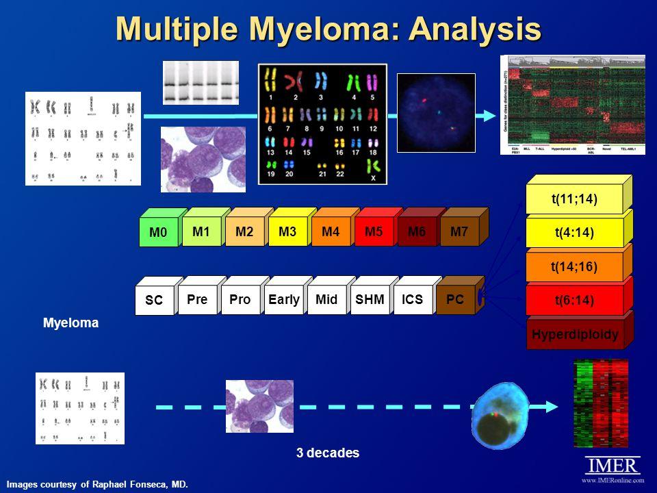 Multiple Myeloma: Analysis 3 decades Myeloma M0 M1M2M3M4M5M6M7 Hyperdiploidy t(6:14) SC PreProEarlyMidSHMICSPC t(14;16) t(4:14) t(11;14) Images courte