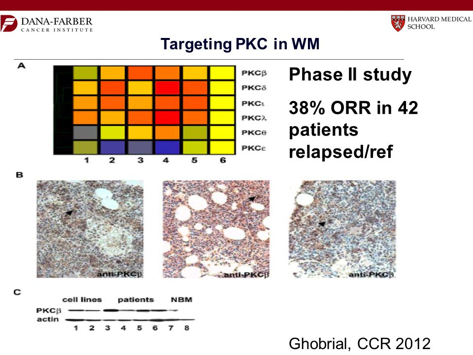 Targeting PKC in WM Phase II study 38% ORR in 42 patients relapsed/ref Ghobrial, CCR 2012