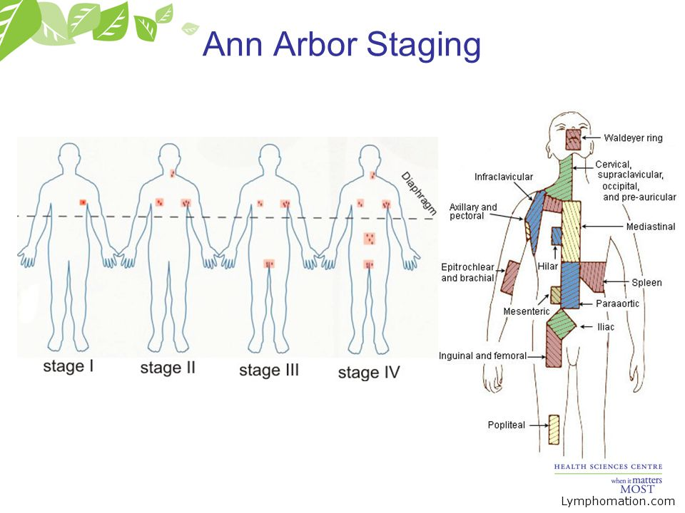 Ann Arbor Staging Lymphomation.com