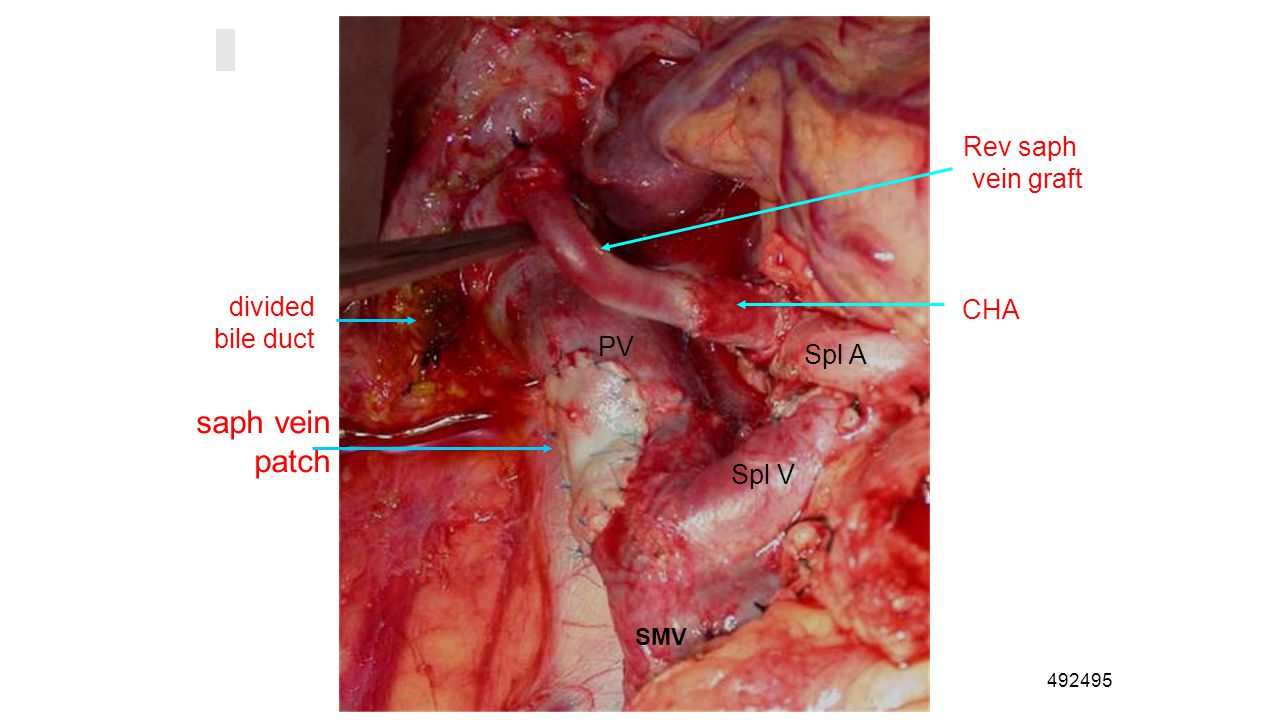 492495 SMV Spl A CHA Spl V saph vein patch divided bile duct PV Rev saph vein graft