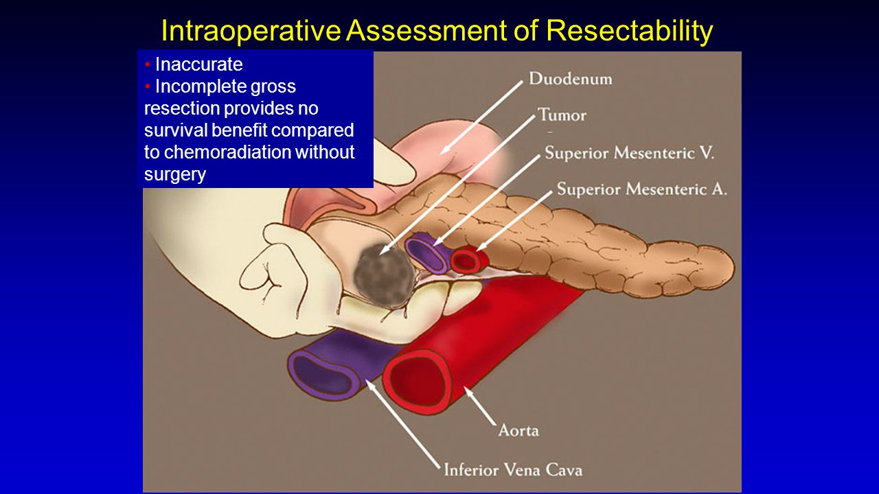 Intraoperative Assessment of Resectability Inaccurate Incomplete gross resection provides no survival benefit compared to chemoradiation without surge