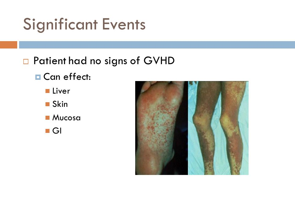 Significant Events  Patient had no signs of GVHD  Can effect: Liver Skin Mucosa GI