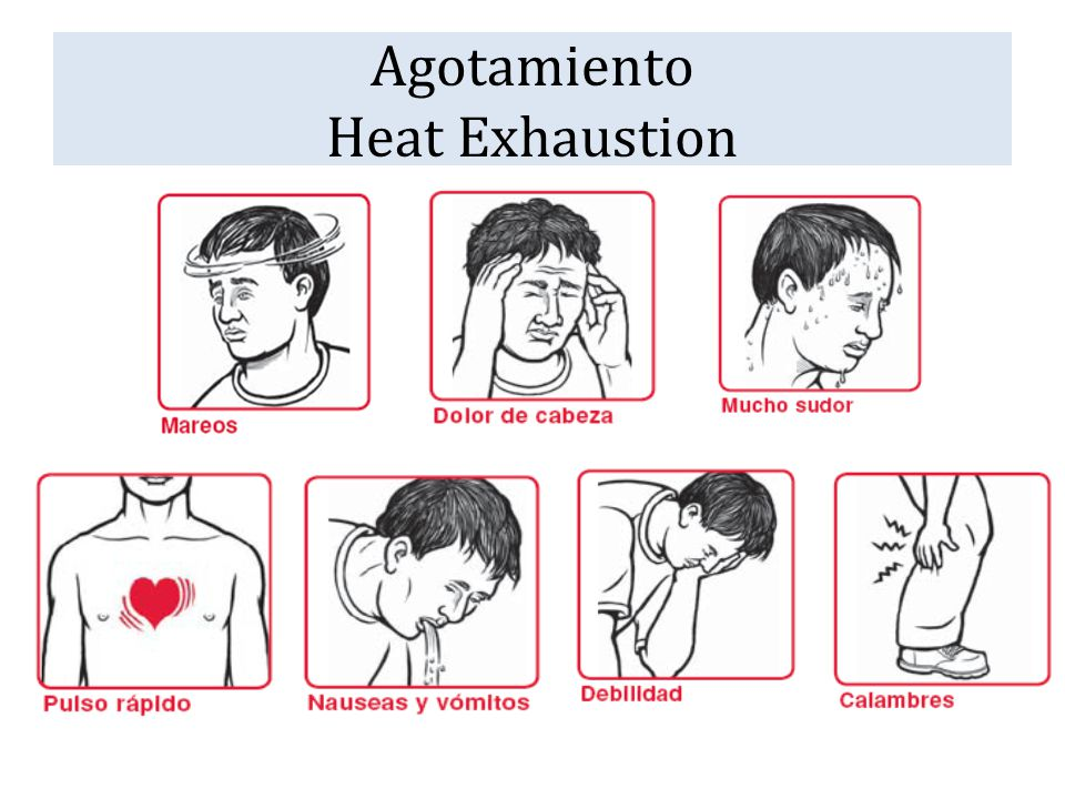 Agotamiento Heat Exhaustion