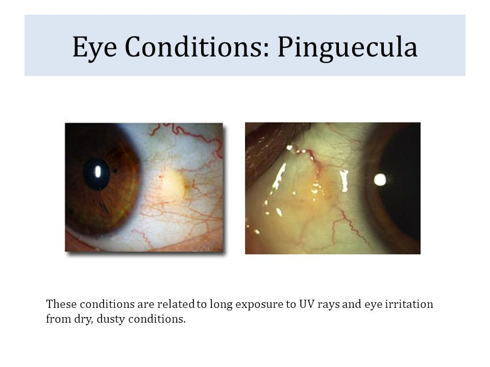 Eye Conditions: Pinguecula These conditions are related to long exposure to UV rays and eye irritation from dry, dusty conditions.