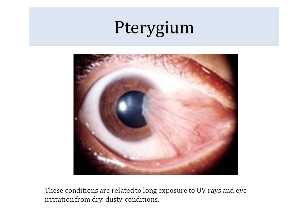 Pterygium These conditions are related to long exposure to UV rays and eye irritation from dry, dusty conditions.