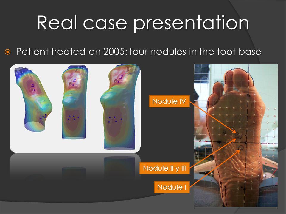 Real case presentation  Patient treated on 2005: four nodules in the foot base Nodule I Nodule II y III Nodule IV