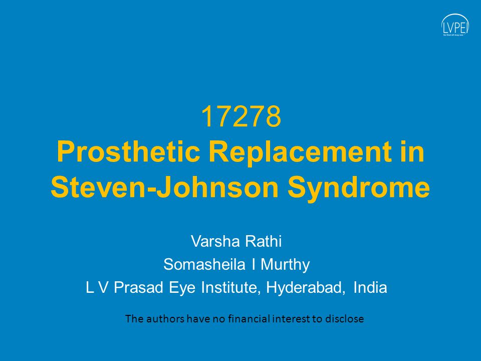 17278 Prosthetic Replacement in Steven-Johnson Syndrome Varsha Rathi Somasheila I Murthy L V Prasad Eye Institute, Hyderabad, India The authors have no financial interest to disclose