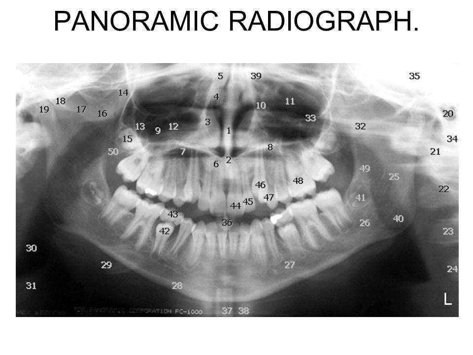 PANORAMIC RADIOGRAPH.
