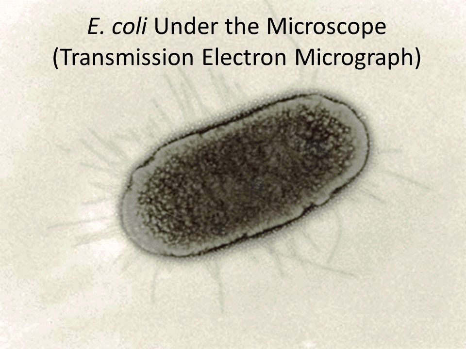 E. coli Under the Microscope (Transmission Electron Micrograph)