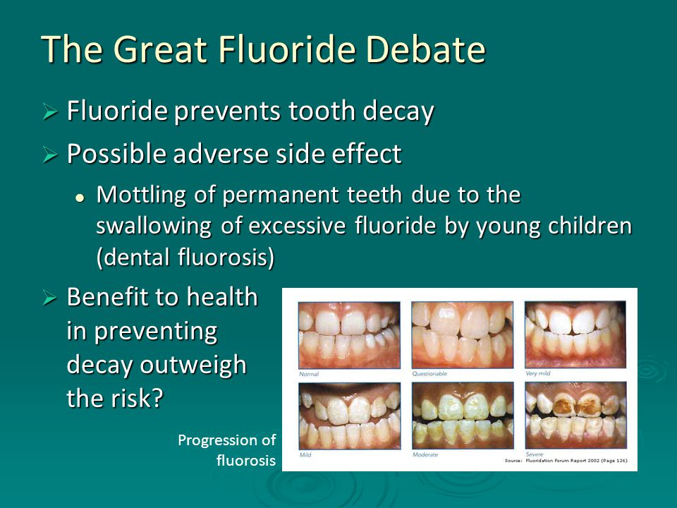 The Great Fluoride Debate  Fluoride prevents tooth decay  Possible adverse side effect Mottling of permanent teeth due to the swallowing of excessiv