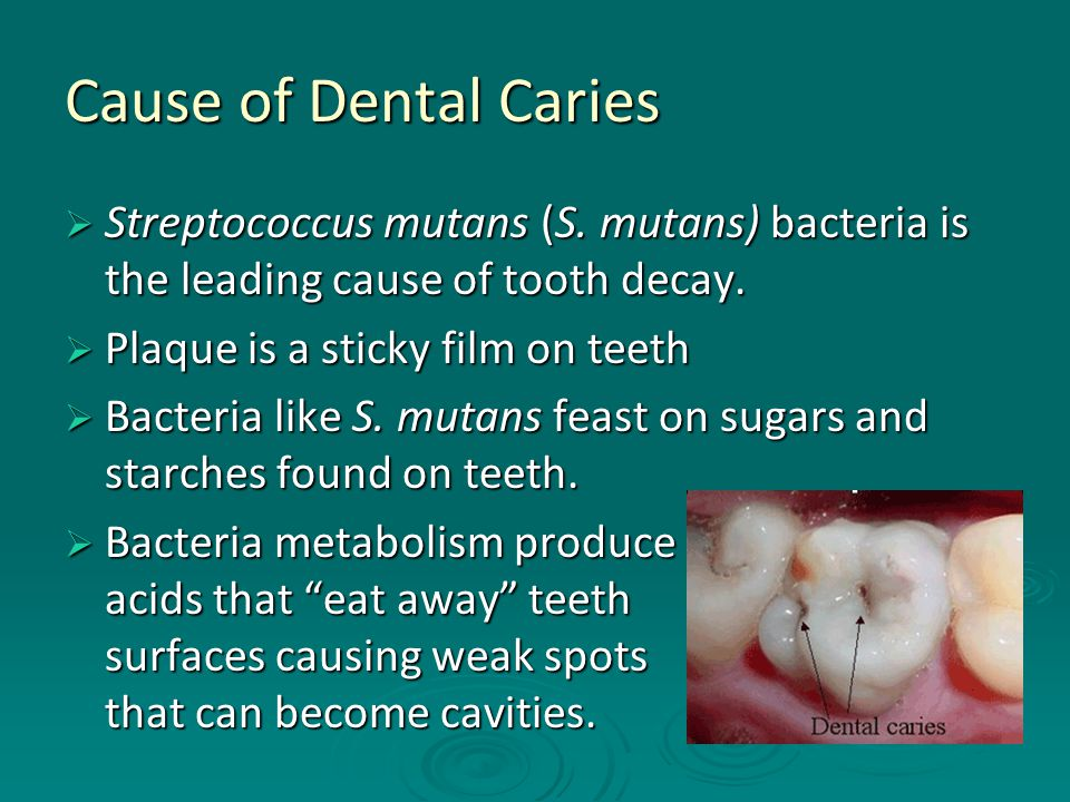 Cause of Dental Caries  Streptococcus mutans (S.