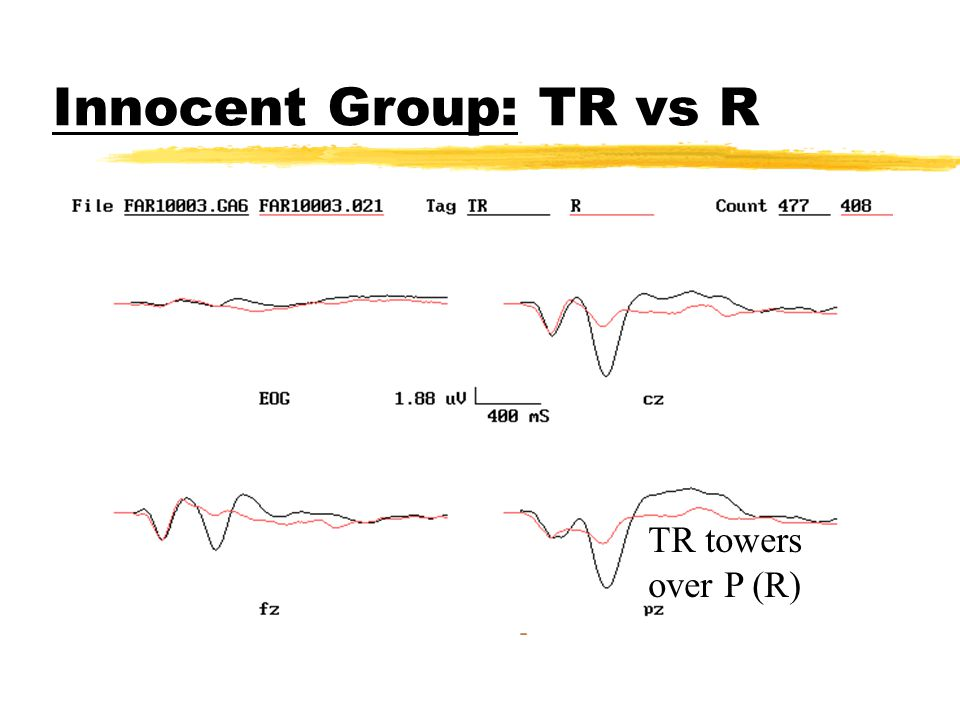 Innocent Group: R vs W Both lack P300