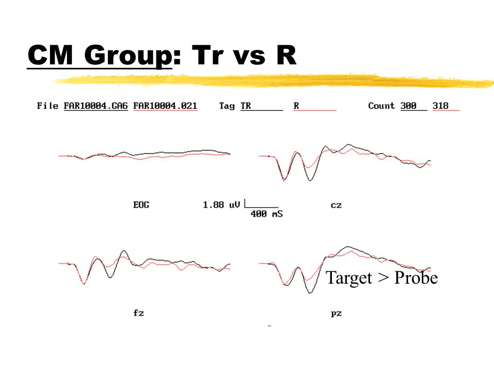 CM Group : R vs W No difference P(R) vs I (W)